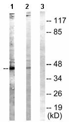 Western blot - Anti-NCF1 (phospho S304) antibody (ab63554)