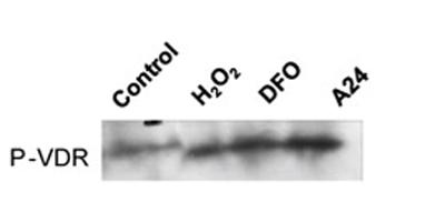 Western blot - Anti-Vitamin D Receptor (phospho S208) antibody (ab63572)
