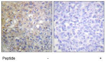 Immunohistochemistry (Formalin/PFA-fixed paraffin-embedded sections) - Anti-FGFR1 antibody (ab63601)