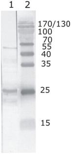 Western blot - Anti-HIV1 tat antibody [N3] (ab63957)