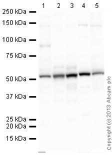 Western blot - Anti-TNF Receptor I antibody (ab64006)