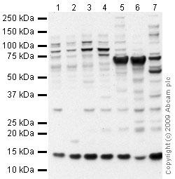 Western blot - HINT1 antibody (ab64071)