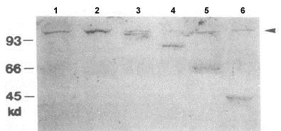 Western blot - Anti-Dis3 antibody (ab64289)