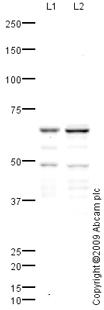 Western blot - Anti-IKZF3 antibody (ab64400)