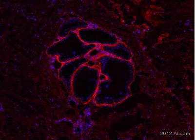 Immunohistochemistry (Frozen sections) - Anti-Procollagen Type 1 antibody [M-58] (ab64409)