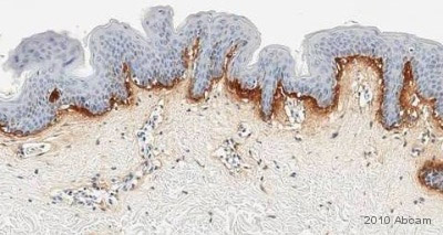 Immunohistochemistry (Formalin/PFA-fixed paraffin-embedded sections) - Anti-Procollagen Type 1 antibody [M-58] (ab64409)