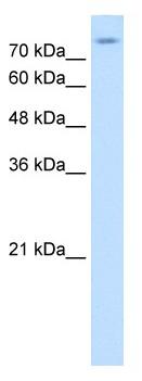 Western blot - Anti-SLC20A2 antibody (ab64412)