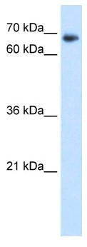 Western blot - Anti-TAF6 antibody (ab64423)