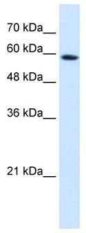 Western blot - Anti-PSG9 antibody (ab64425)