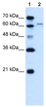 Western blot - Anti-SLC15A4 antibody (ab64429)