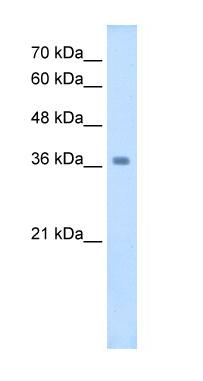 Western blot - Anti-Wnt16 antibody (ab64461)