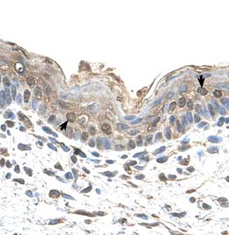 Immunohistochemistry (Formalin/PFA-fixed paraffin-embedded sections) - Anti-Ribophorin II antibody (ab64467)