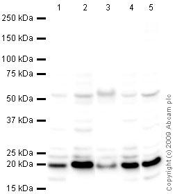 Western blot - Anti-CDC42 antibody (ab64533)