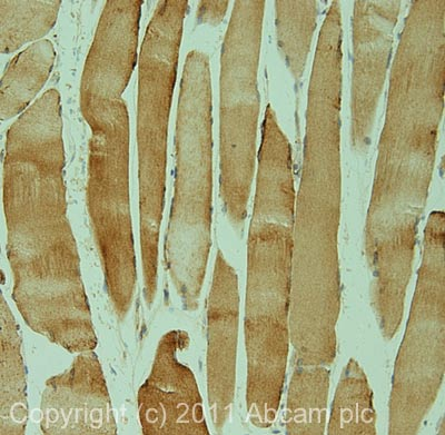 Immunohistochemistry (Formalin/PFA-fixed paraffin-embedded sections) - Frizzled 7 antibody (ab64636)