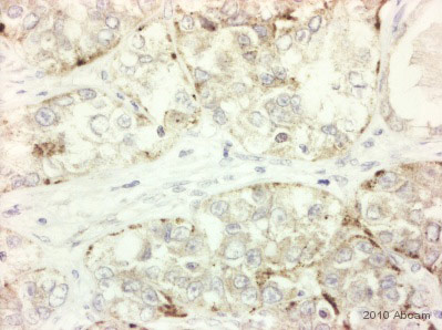Immunohistochemistry (Formalin/PFA-fixed paraffin-embedded sections) - Anti-Frizzled 7 antibody (ab64636)