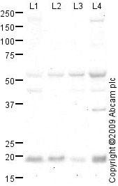 Western blot - Anti-RHOC antibody (ab64659)