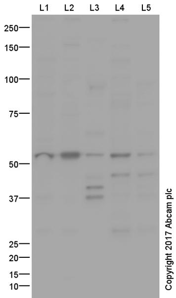 Western blot - Anti-GCM2 antibody (ab64723)