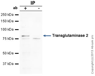 Immunoprecipitation - Anti-Transglutaminase 2 antibody (ab64771)