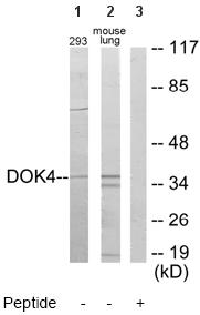 Western blot - Anti-DOK4 antibody (ab64841)