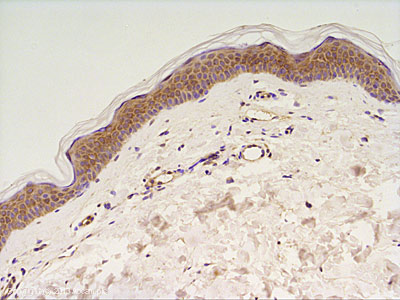 Immunohistochemistry (Formalin/PFA-fixed paraffin-embedded sections) - Anti-DGKA antibody (ab64845)