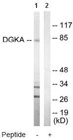 Western blot - Anti-DGKA antibody (ab64845)