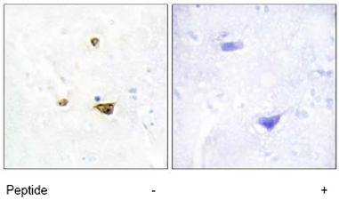 Immunohistochemistry (Formalin/PFA-fixed paraffin-embedded sections) - Anti-EZH1 antibody (ab64850)