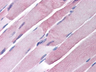 Immunohistochemistry (Formalin/PFA-fixed paraffin-embedded sections) - Anti-GOT2 antibody (ab64893)
