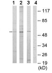 Western blot - Anti-ETV6 / Tel antibody (ab64909)