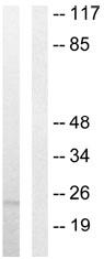 Western blot - Anti-TNFSF9 antibody (ab64912)