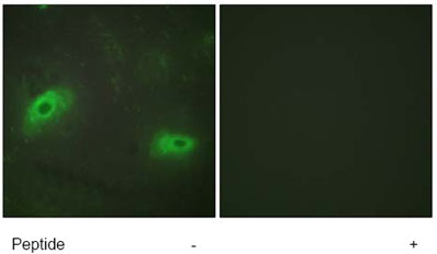 Immunocytochemistry/ Immunofluorescence - Anti-TNFSF9 antibody (ab64912)