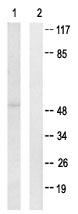 Western blot - Anti-FRK antibody (ab64914)