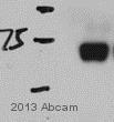Western blot - Anti-GRK5 antibody (ab64943)
