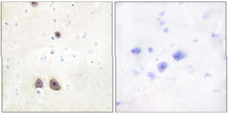 Immunohistochemistry (Formalin/PFA-fixed paraffin-embedded sections) - Anti-ATP6IP2 antibody (ab64957)
