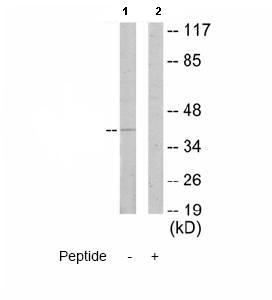 Western blot - Anti-p35 antibody (ab64960)