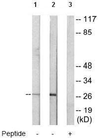 Western blot - Anti-CEBP Delta antibody (ab65081)