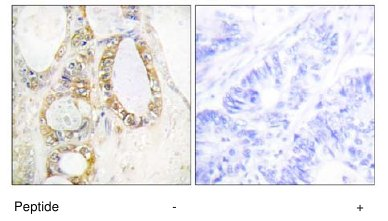 Immunohistochemistry (Formalin/PFA-fixed paraffin-embedded sections) - Anti-MUC13 antibody (ab65109)