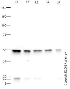Western blot - Anti-FOXC2 antibody (ab65141)