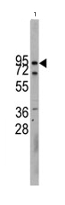 Western blot - Anti-cadherin 10 antibody - Aminoterminal end (ab65231)