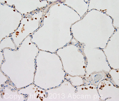 Immunohistochemistry (Formalin/PFA-fixed paraffin-embedded sections) - Anti-PDGF Receptor alpha antibody (ab65258)