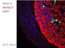 Immunohistochemistry (Formalin/PFA-fixed paraffin-embedded sections) - Anti-Notch1 antibody (ab65297)