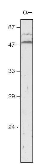 Western blot - Anti-atpA antibody (ab65369)