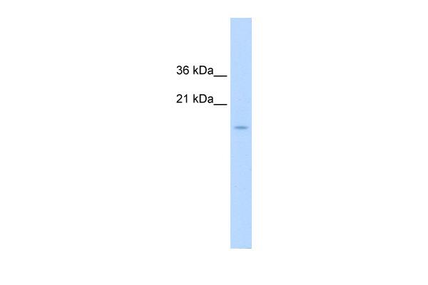 Western blot - Anti-CENPA antibody (ab65678)