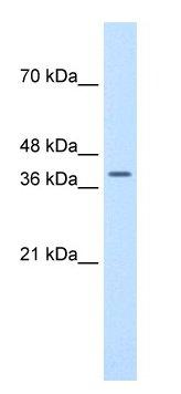 Western blot - Anti-TFB2M antibody (ab66014)