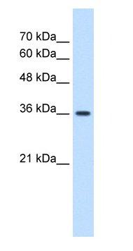 Western blot - Anti-MAS1 antibody (ab66030)