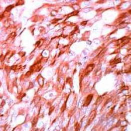 Immunohistochemistry (Formalin/PFA-fixed paraffin-embedded sections) - Anti-S100 antibody (ab66041)