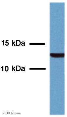 Western blot - Anti-TGF beta antibody (ab66043)