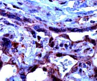 Immunohistochemistry (Formalin/PFA-fixed paraffin-embedded sections) - Anti-TGF beta antibody (ab66043)