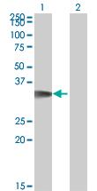 Western blot - Anti-p35 antibody (ab66064)