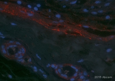 Immunohistochemistry (Formalin/PFA-fixed paraffin-embedded sections) - Anti-Oct-1 antibody (ab66132)
