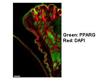 Immunohistochemistry (Formalin/PFA-fixed paraffin-embedded sections) - Anti-PPAR gamma antibody (ab66343)